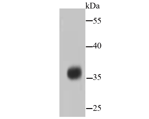 Western blot analysis of PP2A alpha + beta on hybrid fish (crucian-carp) brain tissue lysates. Proteins were transferred to a PVDF membrane and blocked with 5% BSA in PBS for 1 hour at room temperature. The primary antibody (ET1611-54, 1/500) was used in 5% BSA at room temperature for 2 hours. Goat Anti-Rabbit IgG - HRP Secondary Antibody (HA1001) at 1:5,000 dilution was used for 1 hour at room temperature.