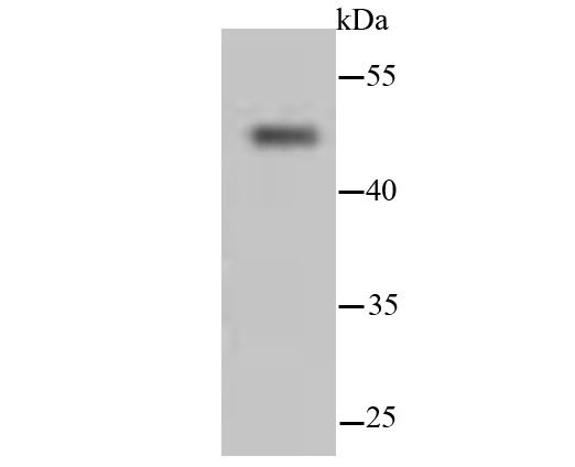 Western blot analysis of Cytokeratin 13 on hybrid fish (crucian-carp) brain tissue lysates. Proteins were transferred to a PVDF membrane and blocked with 5% BSA in PBS for 1 hour at room temperature. The primary antibody (ET1611-55, 1/500) was used in 5% BSA at room temperature for 2 hours. Goat Anti-Rabbit IgG - HRP Secondary Antibody (HA1001) at 1:200,000 dilution was used for 1 hour at room temperature.