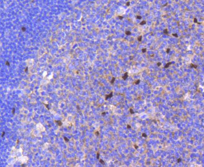Immunohistochemical analysis of paraffin-embedded human breast carcinoma tissue using anti-SOX9 antibody. The section was pre-treated using heat mediated antigen retrieval with Tris-EDTA buffer (pH 8.0-8.4) for 20 minutes.The tissues were blocked in 5% BSA for 30 minutes at room temperature, washed with ddH2O and PBS, and then probed with the primary antibody (ET1611-56, 1/50) for 30 minutes at room temperature. The detection was performed using an HRP conjugated compact polymer system. DAB was used as the chromogen. Tissues were counterstained with hematoxylin and mounted with DPX.