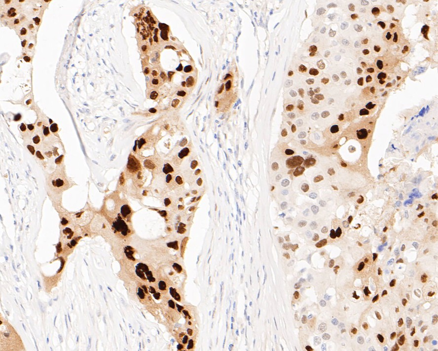 Immunohistochemical analysis of paraffin-embedded mouse colon tissue using anti-SOX9 antibody. The section was pre-treated using heat mediated antigen retrieval with Tris-EDTA buffer (pH 8.0-8.4) for 20 minutes.The tissues were blocked in 5% BSA for 30 minutes at room temperature, washed with ddH2O and PBS, and then probed with the primary antibody (ET1611-56, 1/50) for 30 minutes at room temperature. The detection was performed using an HRP conjugated compact polymer system. DAB was used as the chromogen. Tissues were counterstained with hematoxylin and mounted with DPX.