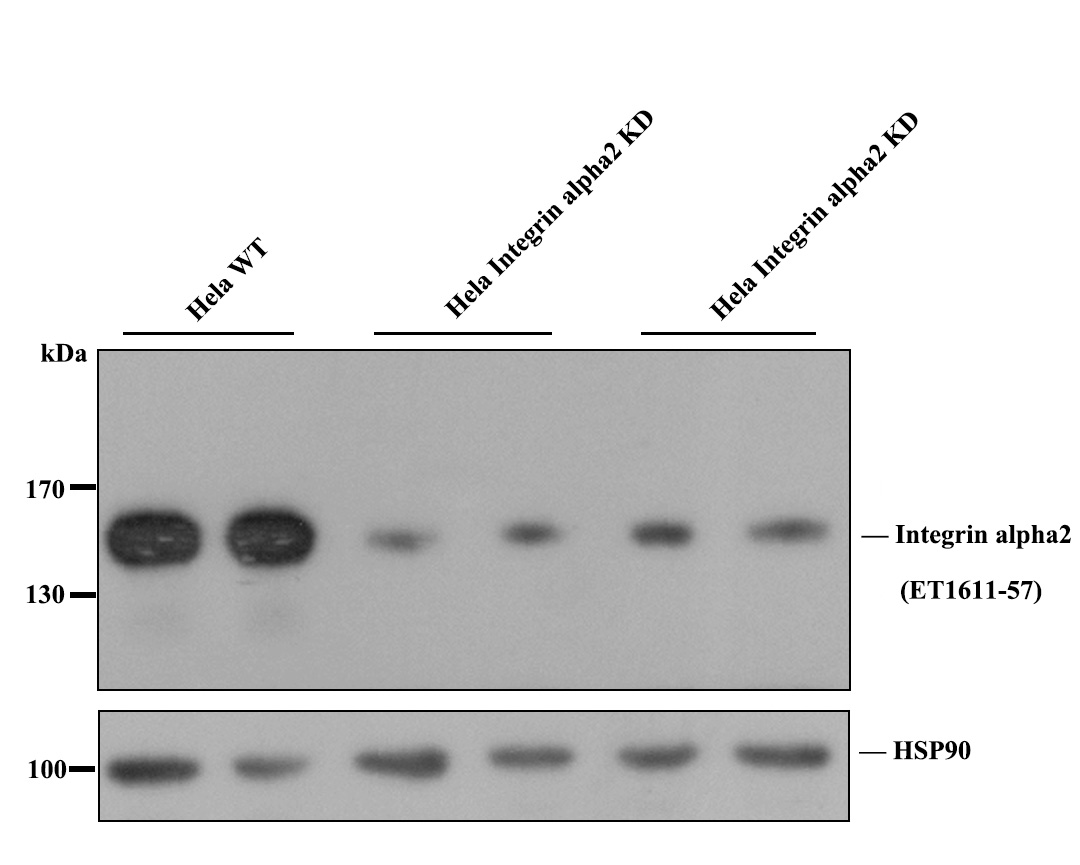 Western blot analysis of Integrin alpha 2 on different lysates. Proteins were transferred to a PVDF membrane and blocked with 5% BSA in PBS for 1 hour at room temperature. The primary antibody (ET1611-57, 1/500) was used in 5% BSA at room temperature for 2 hours. Goat Anti-Rabbit IgG - HRP Secondary Antibody (HA1001) at 1:5,000 dilution was used for 1 hour at room temperature.<br /> Positive control: <br /> Lane 1: MCF-7 cell lysate<br /> Lane 2: A431 cell lysate