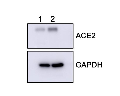 Western blot analysis of ACE2 on Hamster testis (1) and stomach (2) tissue lysates using anti-ACE2 antibody at 1/1,000 dilution.