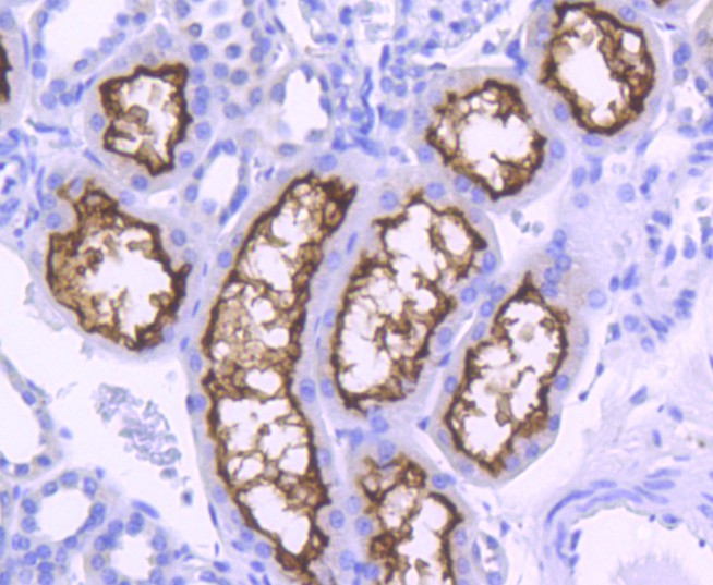 Immunohistochemical analysis of paraffin-embedded human breast carcinoma tissue using anti-ACE2 antibody. The section was pre-treated using heat mediated antigen retrieval with Tris-EDTA buffer (pH 8.0-8.4) for 20 minutes.The tissues were blocked in 5% BSA for 30 minutes at room temperature, washed with ddH2O and PBS, and then probed with the primary antibody (ET1611-58, 1/50) for 30 minutes at room temperature. The detection was performed using an HRP conjugated compact polymer system. DAB was used as the chromogen. Tissues were counterstained with hematoxylin and mounted with DPX.
