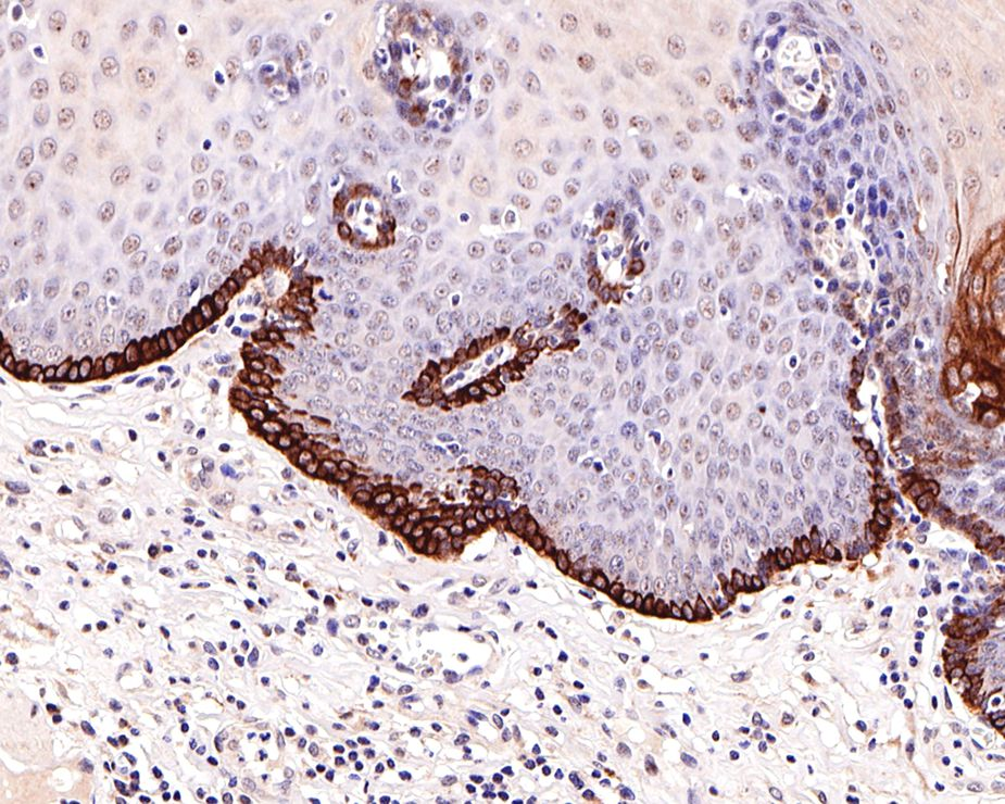 Flow cytometric analysis of CCR2 was done on K562 cells. The cells were fixed, permeabilized and stained with the primary antibody (ET1611-65, 1/50) (red). After incubation of the primary antibody at room temperature for an hour, the cells were stained with a Alexa Fluor 488-conjugated Goat anti-Rabbit IgG Secondary antibody at 1/1000 dilution for 30 minutes.Unlabelled sample was used as a control (cells without incubation with primary antibody; black).