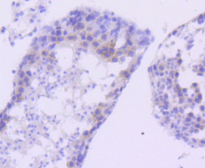 Immunohistochemical analysis of paraffin-embedded mouse stomach tissue using anti-FANCD2 antibody. Counter stained with hematoxylin.