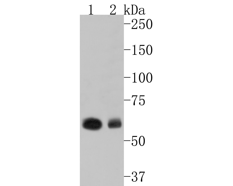 Western blot analysis of Cytokeratin 6 on human skin lysates using anti-Cytokeratin 6 antibody at 1/1,000 dilution.
