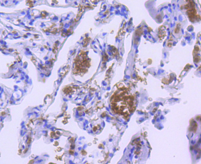 Immunohistochemical analysis of paraffin-embedded human lung tissue using anti-Hemoglobin subunit alpha antibody. The section was pre-treated using heat mediated antigen retrieval with Tris-EDTA buffer (pH 8.0-8.4) for 20 minutes.The tissues were blocked in 5% BSA for 30 minutes at room temperature, washed with ddH2O and PBS, and then probed with the primary antibody (ET1611-81, 1/50) for 30 minutes at room temperature. The detection was performed using an HRP conjugated compact polymer system. DAB was used as the chromogen. Tissues were counterstained with hematoxylin and mounted with DPX.
