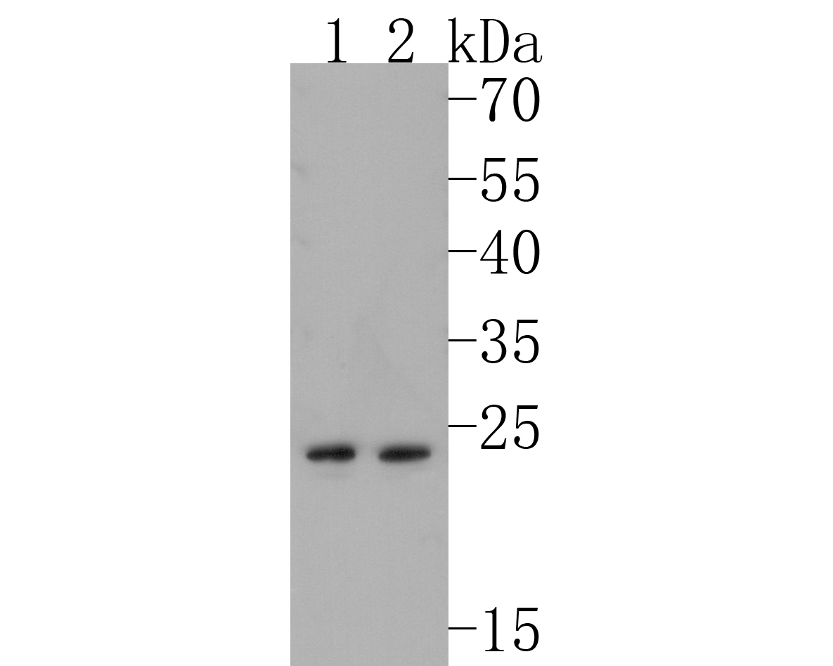 Western blot analysis of TAPA1/CD81 on different lysates. Proteins were transferred to a PVDF membrane and blocked with 5% BSA in PBS for 1 hour at room temperature. The primary antibody (ET1611-87, 1/500) was used in 5% BSA at room temperature for 2 hours. Goat Anti-Rabbit IgG - HRP Secondary Antibody (HA1001) at 1:5,000 dilution was used for 1 hour at room temperature.<br /> Positive control: <br /> Lane 1: PC-12 cell lysate<br /> Lane 2: JAR cell lysate