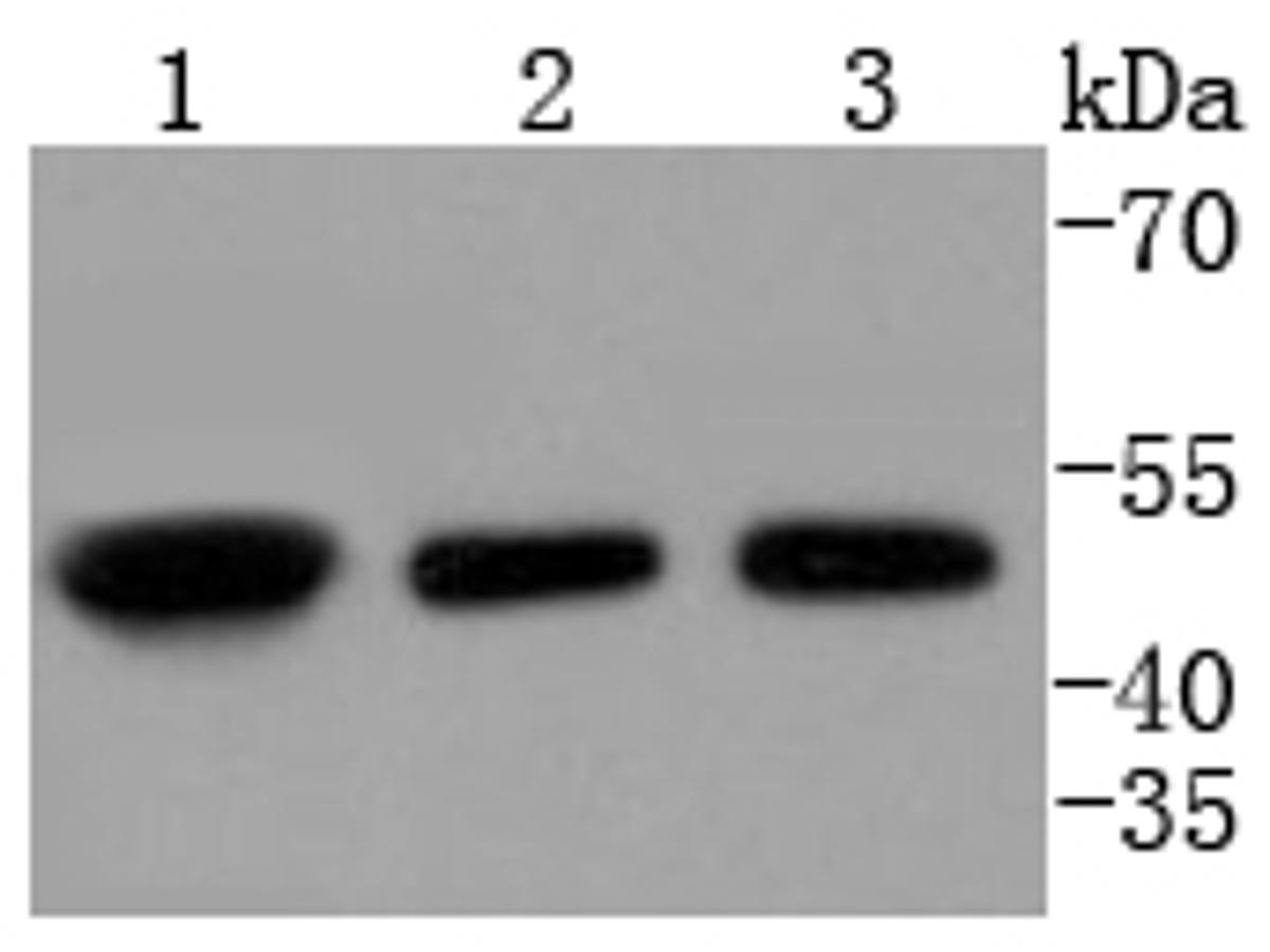 Western blot analysis of E2F2 on different lysates using anti-E2F2 antibody at 1/1,000 dilution.<br /> Positive control: <br /> Lane 1: K562 <br /> Lane 2: 293T <br /> Lane 3: HepG2