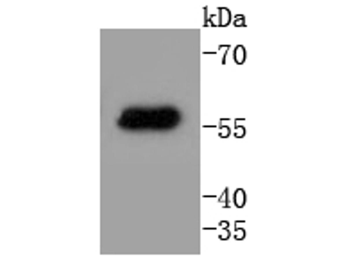 Western blot analysis of Cytokeratin 4 on 293T cell lysates. Proteins were transferred to a PVDF membrane and blocked with 5% BSA in PBS for 1 hour at room temperature. The primary antibody (ET1611-91, 1/500) was used in 5% BSA at room temperature for 2 hours. Goat Anti-Rabbit IgG - HRP Secondary Antibody (HA1001) at 1:5,000 dilution was used for 1 hour at room temperature.