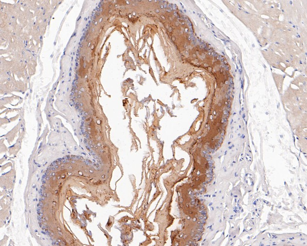 Immunohistochemical analysis of paraffin-embedded human tonsil tissue using anti-Cytokeratin 4 antibody. Counter stained with hematoxylin.