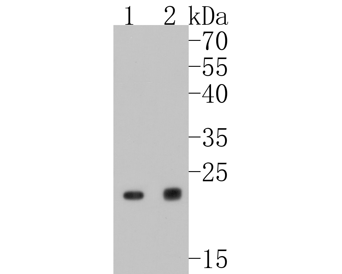 Western blot analysis of RAB7 on different lysates. Proteins were transferred to a PVDF membrane and blocked with 5% BSA in PBS for 1 hour at room temperature. The primary antibody (ET1611-96, 1/500) was used in 5% BSA at room temperature for 2 hours. Goat Anti-Rabbit IgG - HRP Secondary Antibody (HA1001) at 1:5,000 dilution was used for 1 hour at room temperature.<br /> Positive control: <br /> Lane 1: A431 cell lysate<br /> Lane 2: C2C12 cell lysate