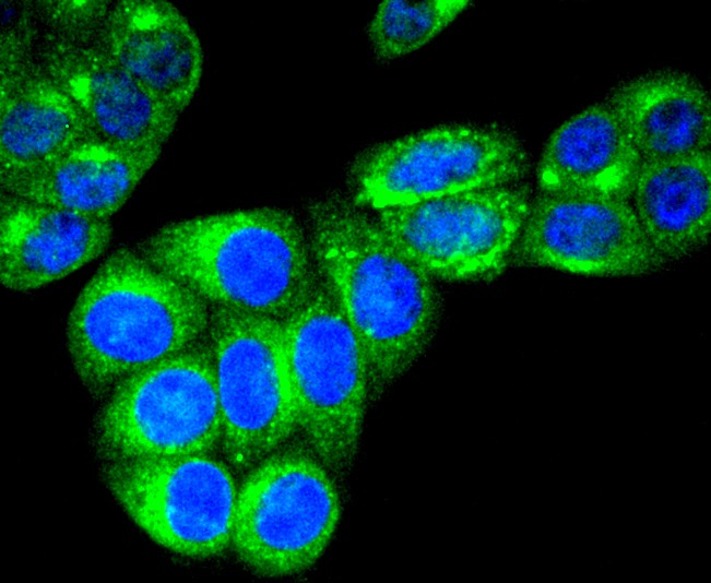 Immunohistochemical analysis of paraffin-embedded human colon carcinoma tissue using anti-RAB7 antibody. The section was pre-treated using heat mediated antigen retrieval with Tris-EDTA buffer (pH 8.0-8.4) for 20 minutes.The tissues were blocked in 5% BSA for 30 minutes at room temperature, washed with ddH2O and PBS, and then probed with the primary antibody (ET1611-96, 1/50) for 30 minutes at room temperature. The detection was performed using an HRP conjugated compact polymer system. DAB was used as the chromogen. Tissues were counterstained with hematoxylin and mounted with DPX.