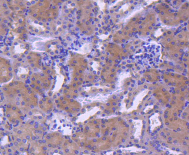Flow cytometric analysis of RAB7 was done on K562 cells. The cells were fixed, permeabilized and stained with the primary antibody (ET1611-96, 1/50) (red). After incubation of the primary antibody at room temperature for an hour, the cells were stained with a Alexa Fluor 488-conjugated Goat anti-Rabbit IgG Secondary antibody at 1/1000 dilution for 30 minutes.Unlabelled sample was used as a control (cells without incubation with primary antibody; black).