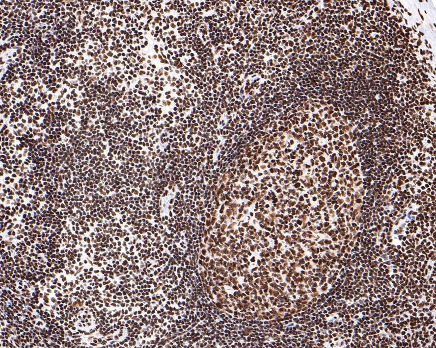 Immunohistochemical analysis of paraffin-embedded human tonsil tissue using anti-SMC1 antibody. The section was pre-treated using heat mediated antigen retrieval with Tris-EDTA buffer (pH 8.0-8.4) for 20 minutes.The tissues were blocked in 5% BSA for 30 minutes at room temperature, washed with ddH2O and PBS, and then probed with the primary antibody (ET1611-97, 1/50) for 30 minutes at room temperature. The detection was performed using an HRP conjugated compact polymer system. DAB was used as the chromogen. Tissues were counterstained with hematoxylin and mounted with DPX.