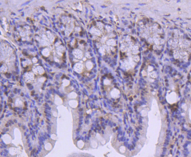 Immunohistochemical analysis of paraffin-embedded mouse colon tissue using anti-SMC1 antibody. The section was pre-treated using heat mediated antigen retrieval with Tris-EDTA buffer (pH 8.0-8.4) for 20 minutes.The tissues were blocked in 5% BSA for 30 minutes at room temperature, washed with ddH2O and PBS, and then probed with the primary antibody (ET1611-97, 1/50) for 30 minutes at room temperature. The detection was performed using an HRP conjugated compact polymer system. DAB was used as the chromogen. Tissues were counterstained with hematoxylin and mounted with DPX.