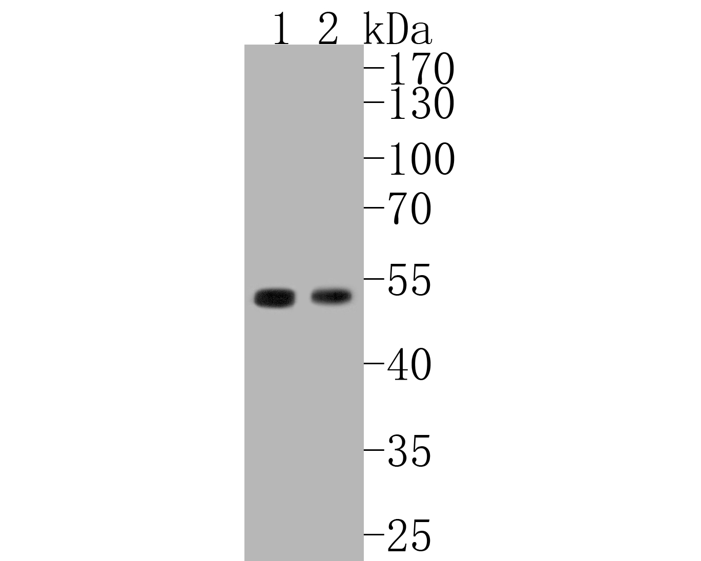 Western blot analysis of Cyclin E1 on different lysates. Proteins were transferred to a PVDF membrane and blocked with 5% BSA in PBS for 1 hour at room temperature. The primary antibody (ET1612-16, 1/500) was used in 5% BSA at room temperature for 2 hours. Goat Anti-Rabbit IgG - HRP Secondary Antibody (HA1001) at 1:5,000 dilution was used for 1 hour at room temperature.<br /> Positive control: <br /> Lane 1: human placenta tissue lysate<br /> Lane 2: K562 cell lysate