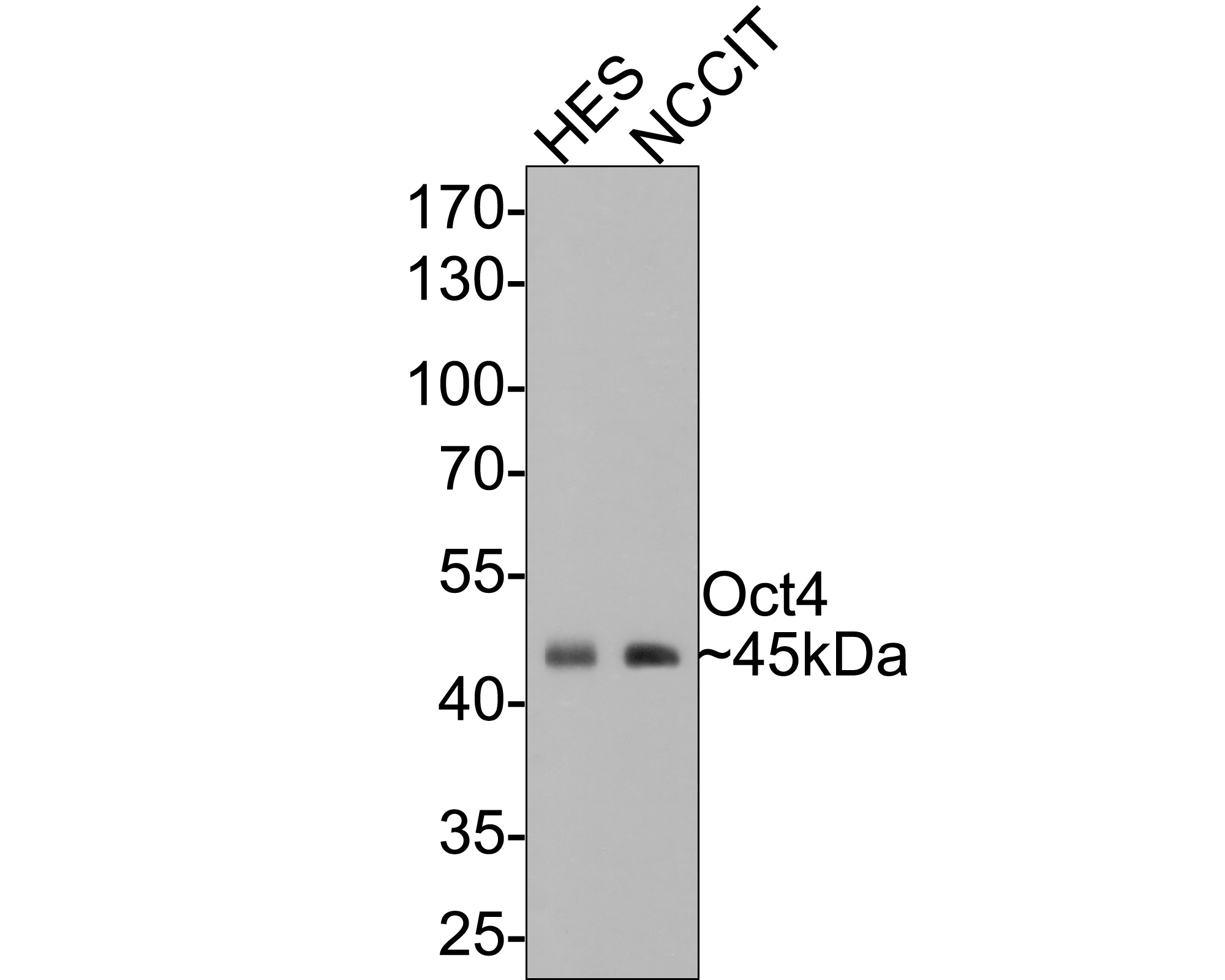 Western blot analysis of Oct4 on different lysates. Proteins were transferred to a PVDF membrane and blocked with 5% BSA in PBS for 1 hour at room temperature. The primary antibody (ET1612-20, 1/500) was used in 5% BSA at room temperature for 2 hours. Goat Anti-Rabbit IgG - HRP Secondary Antibody (HA1001) at 1:5,000 dilution was used for 1 hour at room temperature.<br /> Positive control: <br /> Lane 1: F9 cell lysate<br /> Lane 2: HES cell lysate