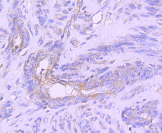 Flow cytometric analysis of MCF-7 cells with STAT1 alpha antibody at 1/50 dilution (red) compared with an unlabelled control (cells without incubation with primary antibody; black). Alexa Fluor 488-conjugated goat anti rabbit IgG was used as the secondary antibody
