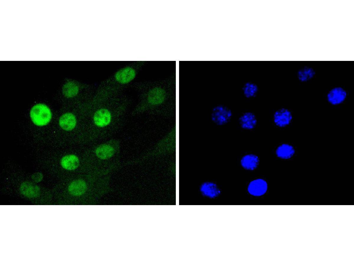 ICC staining of Cdk4 in NIH/3T3 cells (green). Formalin fixed cells were permeabilized with 0.1% Triton X-100 in TBS for 10 minutes at room temperature and blocked with 1% Blocker BSA for 15 minutes at room temperature. Cells were probed with the primary antibody (ET1612-23, 1/50) for 1 hour at room temperature, washed with PBS. Alexa Fluor®488 Goat anti-Rabbit IgG was used as the secondary antibody at 1/1,000 dilution. The nuclear counter stain is DAPI (blue).