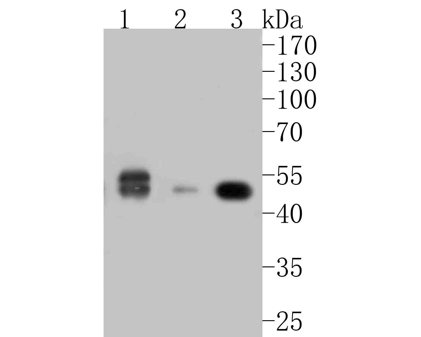 Western blot analysis of Cyclin A2 on different lysates. Proteins were transferred to a PVDF membrane and blocked with 5% BSA in PBS for 1 hour at room temperature. The primary antibody (ET1612-26, 1/500) was used in 5% BSA at room temperature for 2 hours. Goat Anti-Rabbit IgG - HRP Secondary Antibody (HA1001) at 1:5,000 dilution was used for 1 hour at room temperature.<br /> Positive control: <br /> Lane 1: Jurkat cell lysate<br /> Lane 2: NIH/3T3 cell lysate<br /> Lane 2: PC-12 cell lysate