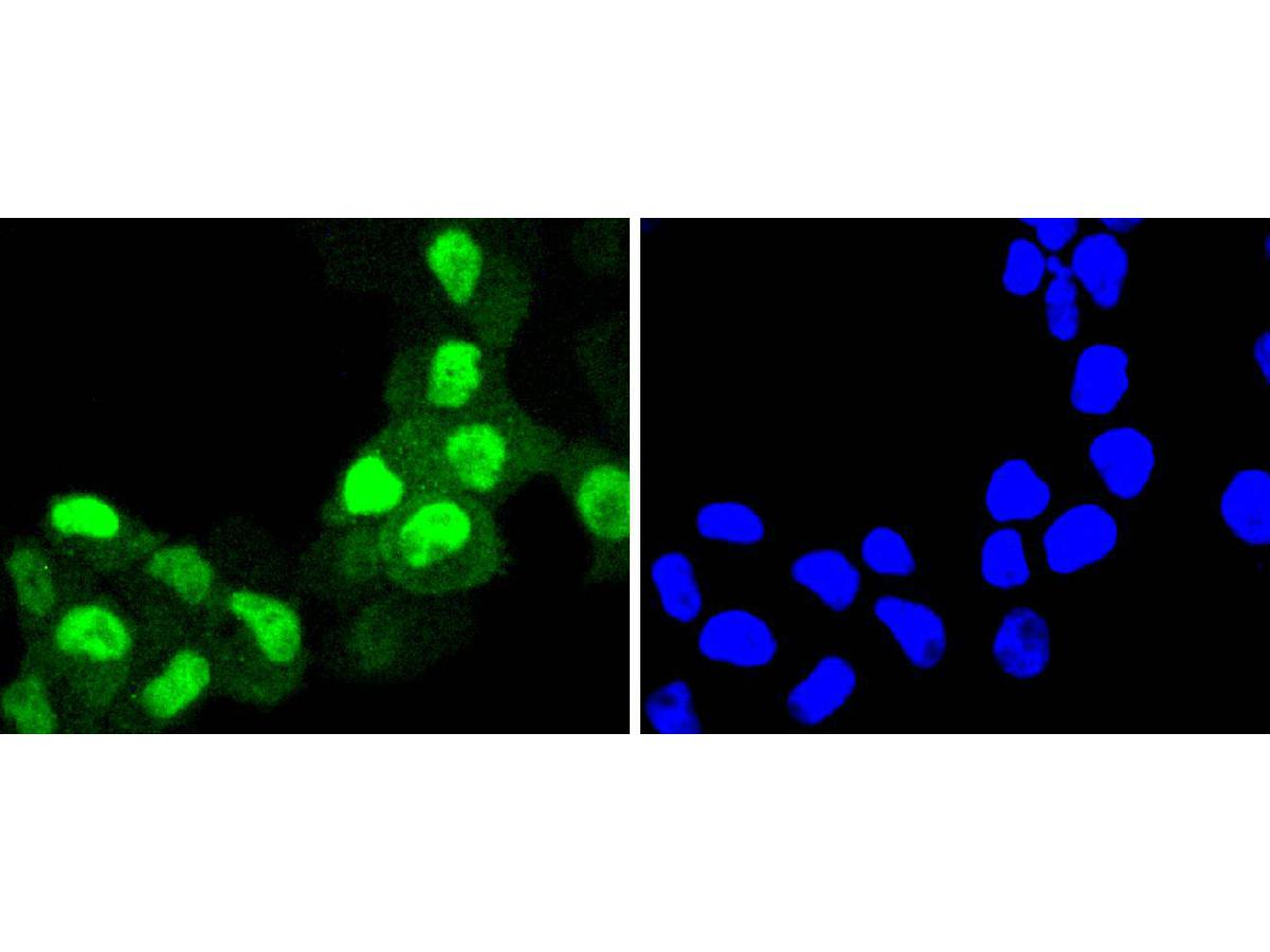 Immunohistochemical analysis of paraffin-embedded human colon carcinoma tissue using anti-Cyclin A2 antibody. The section was pre-treated using heat mediated antigen retrieval with Tris-EDTA buffer (pH 8.0-8.4) for 20 minutes.The tissues were blocked in 5% BSA for 30 minutes at room temperature, washed with ddH2O and PBS, and then probed with the primary antibody (ET1612-26, 1/50) for 30 minutes at room temperature. The detection was performed using an HRP conjugated compact polymer system. DAB was used as the chromogen. Tissues were counterstained with hematoxylin and mounted with DPX.