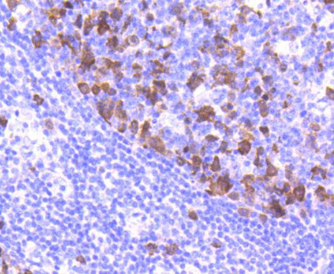 Immunohistochemical analysis of paraffin-embedded mouse colon tissue using anti-Cyclin A2 antibody. The section was pre-treated using heat mediated antigen retrieval with Tris-EDTA buffer (pH 8.0-8.4) for 20 minutes.The tissues were blocked in 5% BSA for 30 minutes at room temperature, washed with ddH2O and PBS, and then probed with the primary antibody (ET1612-26, 1/50) for 30 minutes at room temperature. The detection was performed using an HRP conjugated compact polymer system. DAB was used as the chromogen. Tissues were counterstained with hematoxylin and mounted with DPX.