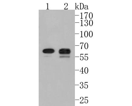 Western blot analysis of PDPK1 on different lysates using anti-PDPK1 antibody at 1/1,000 dilution.<br />  Positive control: <br />  Lane 1: 293T <br />  Lane 2: PC-12 <br />  Lane 3: HL-60