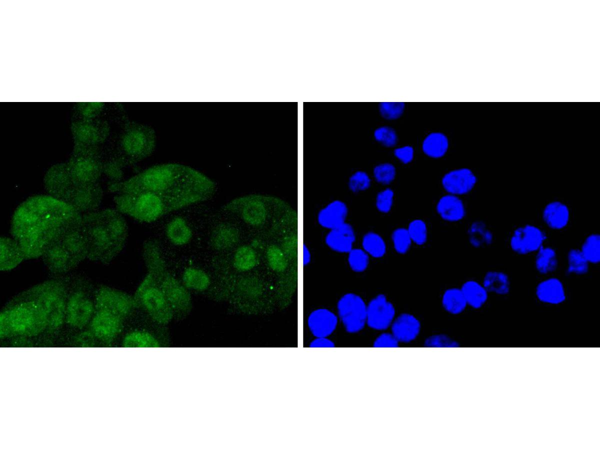 ICC staining of Cdk6 in SW480 cells (green). Formalin fixed cells were permeabilized with 0.1% Triton X-100 in TBS for 10 minutes at room temperature and blocked with 1% Blocker BSA for 15 minutes at room temperature. Cells were probed with the primary antibody (ET1612-3, 1/50) for 1 hour at room temperature, washed with PBS. Alexa Fluor®488 Goat anti-Rabbit IgG was used as the secondary antibody at 1/1,000 dilution. The nuclear counter stain is DAPI (blue).