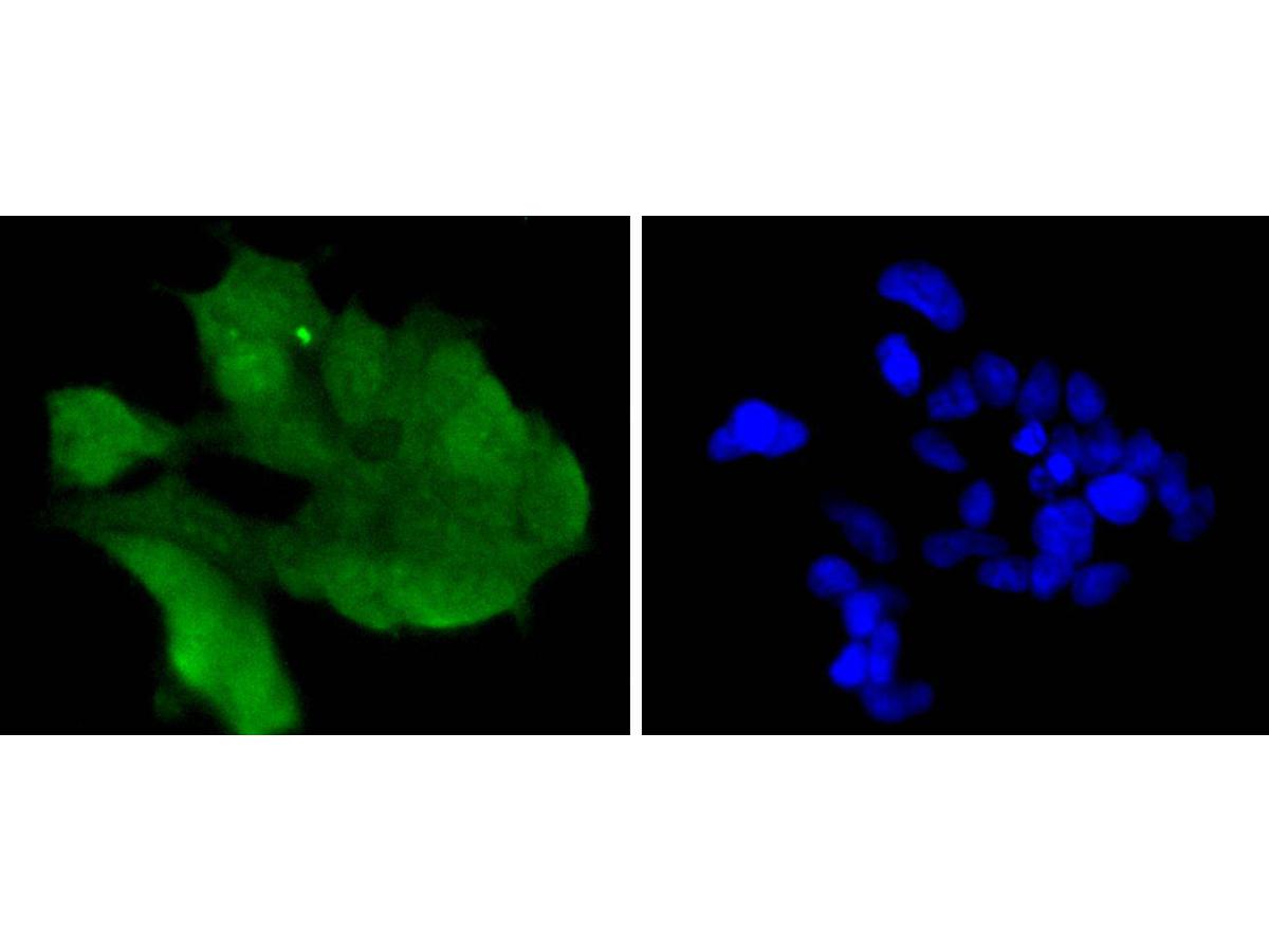 ICC staining of Cdk6 in 293 cells (green). Formalin fixed cells were permeabilized with 0.1% Triton X-100 in TBS for 10 minutes at room temperature and blocked with 1% Blocker BSA for 15 minutes at room temperature. Cells were probed with the primary antibody (ET1612-3, 1/50) for 1 hour at room temperature, washed with PBS. Alexa Fluor®488 Goat anti-Rabbit IgG was used as the secondary antibody at 1/1,000 dilution. The nuclear counter stain is DAPI (blue).