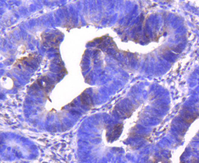 Immunohistochemical analysis of paraffin-embedded human colon carcinoma tissue using anti-Cdk6 antibody. The section was pre-treated using heat mediated antigen retrieval with Tris-EDTA buffer (pH 8.0-8.4) for 20 minutes.The tissues were blocked in 5% BSA for 30 minutes at room temperature, washed with ddH2O and PBS, and then probed with the primary antibody (ET1612-3, 1/50) for 30 minutes at room temperature. The detection was performed using an HRP conjugated compact polymer system. DAB was used as the chromogen. Tissues were counterstained with hematoxylin and mounted with DPX.