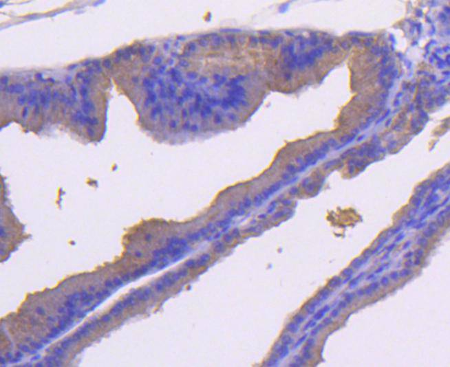 Immunohistochemical analysis of paraffin-embedded rat bladder tissue using anti-MEK7 antibody. Counter stained with hematoxylin.