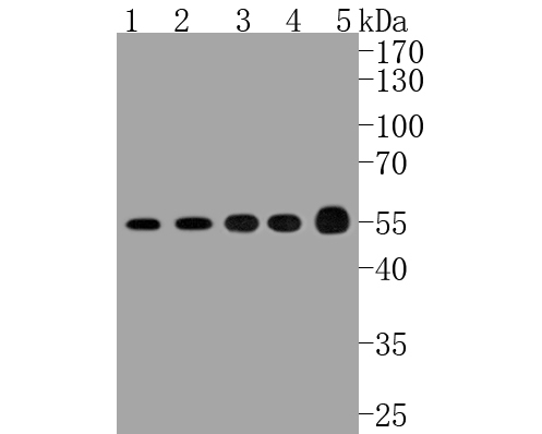 Western blot analysis of ATF4 on different lysates. Proteins were transferred to a PVDF membrane and blocked with 5% BSA in PBS for 1 hour at room temperature. The primary antibody (ET1612-37, 1/500) was used in 5% BSA at room temperature for 2 hours. Goat Anti-Rabbit IgG - HRP Secondary Antibody (HA1001) at 1:5,000 dilution was used for 1 hour at room temperature.<br /> Positive control: <br /> Lane 1: Hela cell lysate<br /> Lane 2: PC-12 cell lysate<br /> Lane 3: HL-60 cell lysate<br /> Lane 4: K562 cell lysate<br /> Lane 5: human lung carcinoma tissue lysate