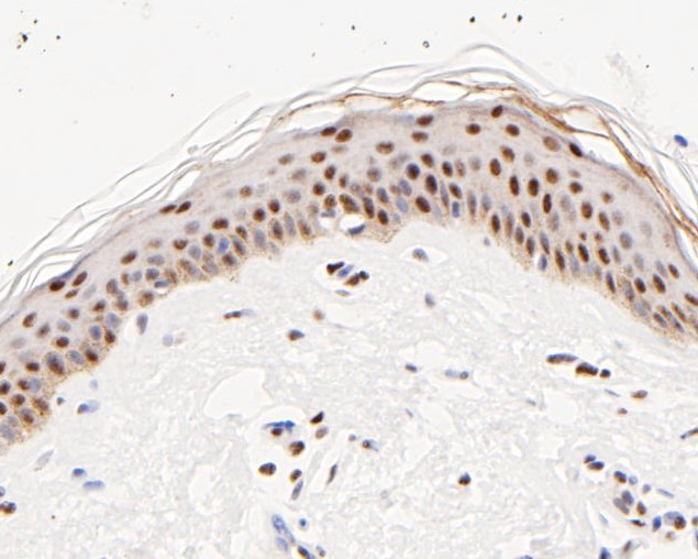 Immunohistochemical analysis of paraffin-embedded human breast carcinoma tissue using anti-ATF4 antibody. The section was pre-treated using heat mediated antigen retrieval with sodium citrate buffer (pH 6.0) for 20 minutes. The tissues were blocked in 5% BSA for 30 minutes at room temperature, washed with ddH2O and PBS, and then probed with the primary antibody (ET1612-37, 1/50) for 30 minutes at room temperature. The detection was performed using an HRP conjugated compact polymer system. DAB was used as the chromogen. Tissues were counterstained with hematoxylin and mounted with DPX.