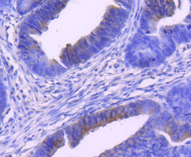 Immunohistochemical analysis of paraffin-embedded human colon cancer tissue using anti-Phospho-MEK1 (S298) antibody. Counter stained with hematoxylin.