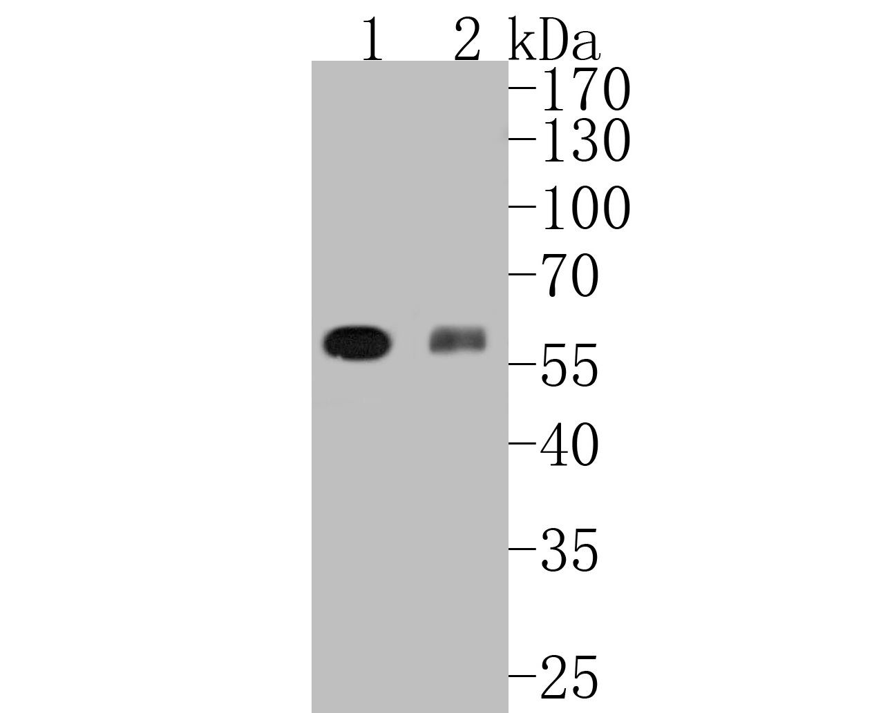 Western blot analysis of RUNX2 on different lysates. Proteins were transferred to a PVDF membrane and blocked with 5% BSA in PBS for 1 hour at room temperature. The primary antibody (ET1612-47, 1/500) was used in 5% BSA at room temperature for 2 hours. Goat Anti-Rabbit IgG - HRP Secondary Antibody (HA1001) at 1:5,000 dilution was used for 1 hour at room temperature.<br /> Positive control: <br /> Lane 1: mouse spleen tissue lysate<br /> Lane 2: U937 cell lysate<br /> Lane 3: HL-60 cell lysate