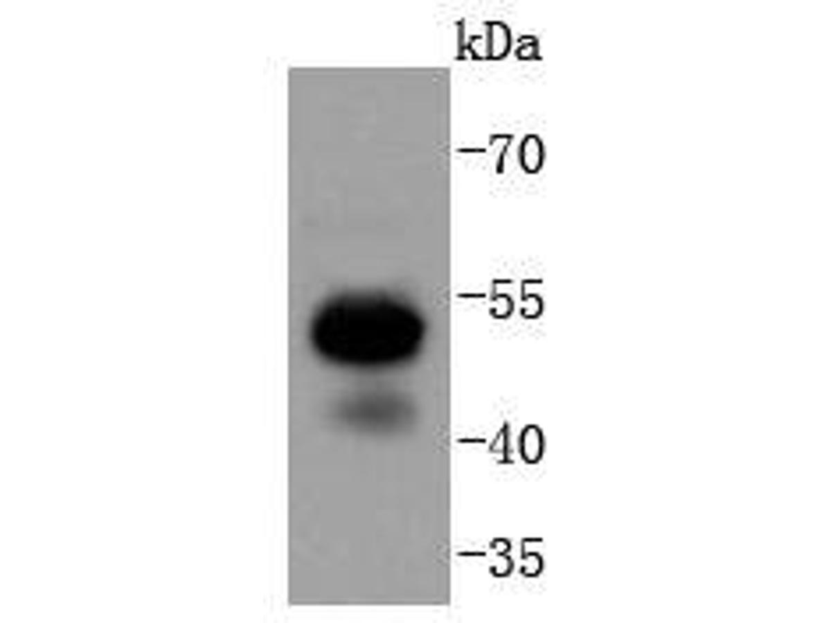 Western blot analysis of RUNX1+RUNX2+RUNX3 on Jurkat cell lysates. Proteins were transferred to a PVDF membrane and blocked with 5% BSA in PBS for 1 hour at room temperature. The primary antibody (ET1612-49, 1/500) was used in 5% BSA at room temperature for 2 hours. Goat Anti-Rabbit IgG - HRP Secondary Antibody (HA1001) at 1:5,000 dilution was used for 1 hour at room temperature.