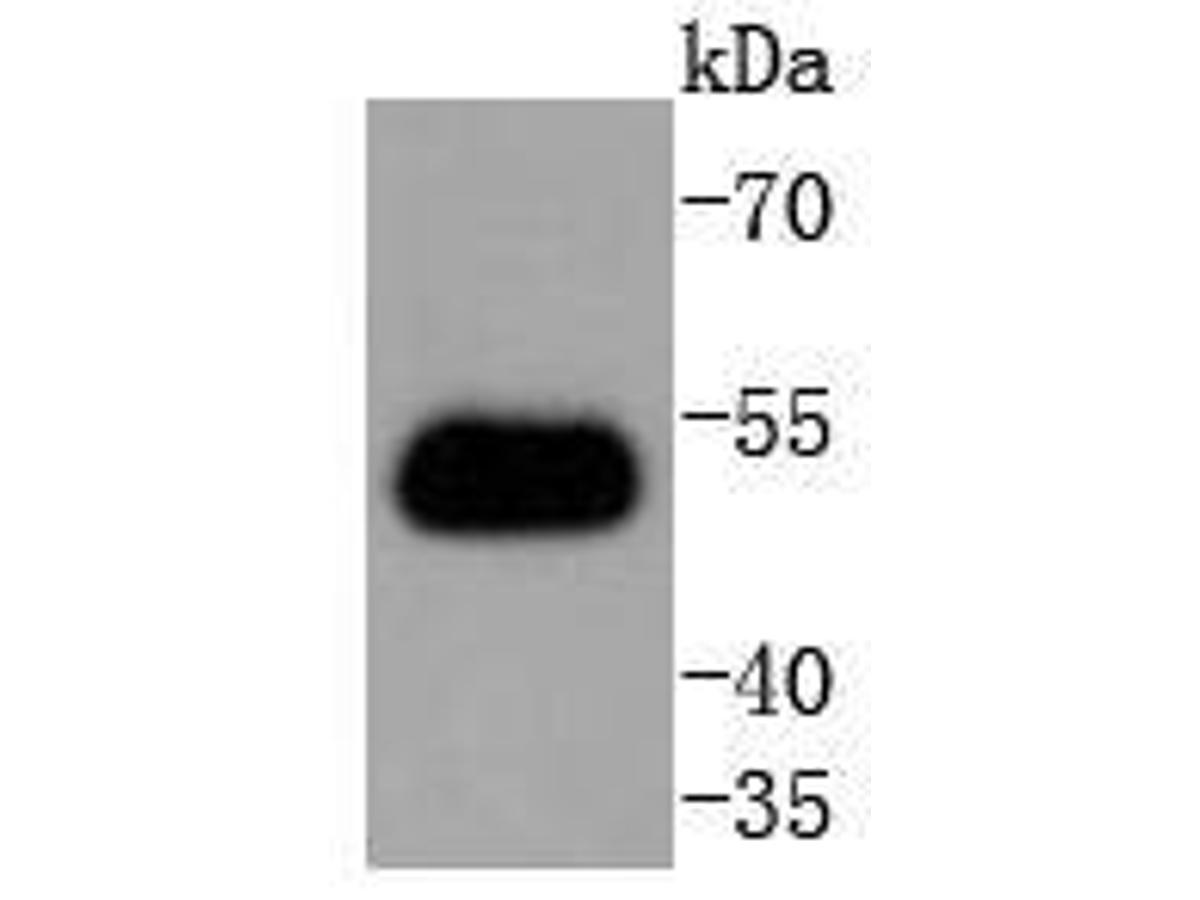 Western blot analysis of TRAF2 on Hela cell lysates. Proteins were transferred to a PVDF membrane and blocked with 5% BSA in PBS for 1 hour at room temperature. The primary antibody (ET1612-5, 1/500) was used in 5% BSA at room temperature for 2 hours. Goat Anti-Rabbit IgG - HRP Secondary Antibody (HA1001) at 1:5,000 dilution was used for 1 hour at room temperature.
