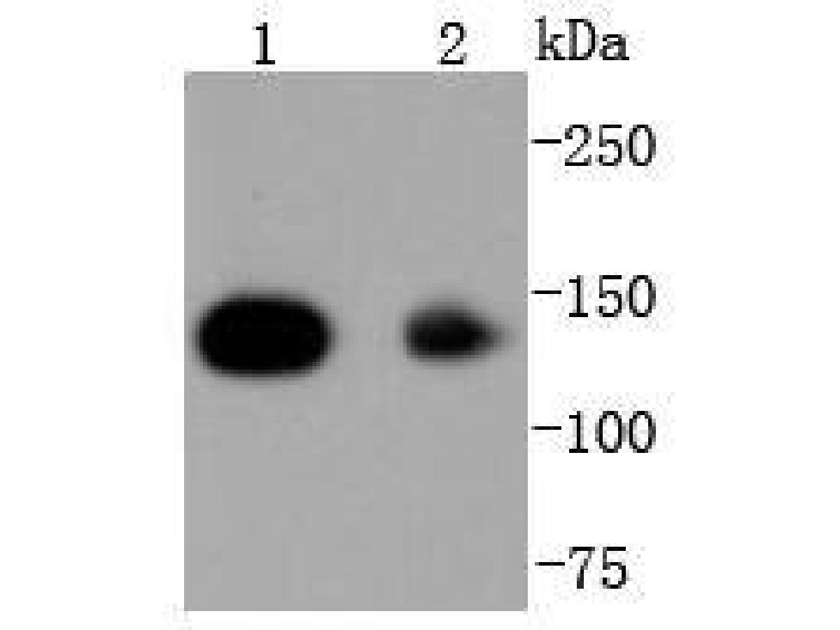 Western blot analysis of HDAC4 on different lysates using anti-HDAC4 antibody at 1/1,000 dilution.<br /> Positive control:   <br /> Lane 1: Hela              <br /> Lane 2: HepG2