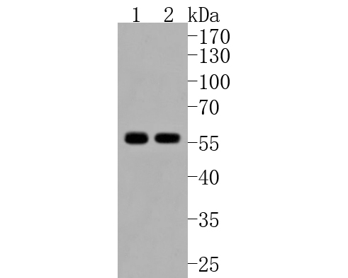 Western blot analysis of TRK fused gene on different lysates. Proteins were transferred to a PVDF membrane and blocked with 5% BSA in PBS for 1 hour at room temperature. The primary antibody (ET1612-52, 1/500) was used in 5% BSA at room temperature for 2 hours. Goat Anti-Rabbit IgG - HRP Secondary Antibody (HA1001) at 1:5,000 dilution was used for 1 hour at room temperature.<br /> Positive control: <br /> Lane 1: 293T cell lysate<br /> Lane 2: Hela cell lysate