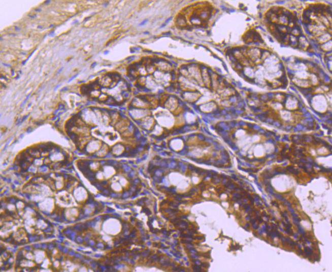 Immunohistochemical analysis of paraffin-embedded mouse colon tissue using anti-TRK fused gene antibody. The section was pre-treated using heat mediated antigen retrieval with Tris-EDTA buffer (pH 8.0-8.4) for 20 minutes.The tissues were blocked in 5% BSA for 30 minutes at room temperature, washed with ddH2O and PBS, and then probed with the primary antibody (ET1612-52, 1/50) for 30 minutes at room temperature. The detection was performed using an HRP conjugated compact polymer system. DAB was used as the chromogen. Tissues were counterstained with hematoxylin and mounted with DPX.