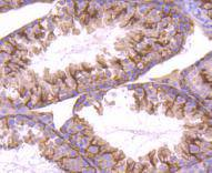 Immunohistochemical analysis of paraffin-embedded mouse testis tissue using anti-STIM1 antibody. Counter stained with hematoxylin.
