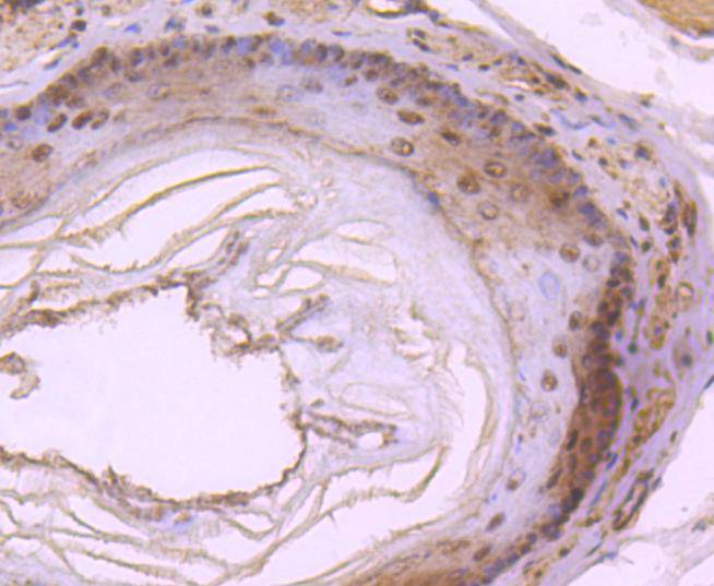 Immunohistochemical analysis of paraffin-embedded rat esophagus tissue using anti-DYNLL1 antibody. The section was pre-treated using heat mediated antigen retrieval with Tris-EDTA buffer (pH 8.0-8.4) for 20 minutes.The tissues were blocked in 5% BSA for 30 minutes at room temperature, washed with ddH2O and PBS, and then probed with the primary antibody (ET1612-64, 1/50) for 30 minutes at room temperature. The detection was performed using an HRP conjugated compact polymer system. DAB was used as the chromogen. Tissues were counterstained with hematoxylin and mounted with DPX.