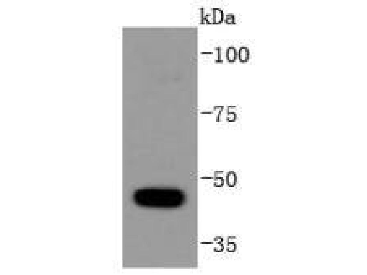 Western blot analysis of HDAC10 on HepG2 cells lysates using anti-HDAC10 antibody at 1/1,000 dilution.