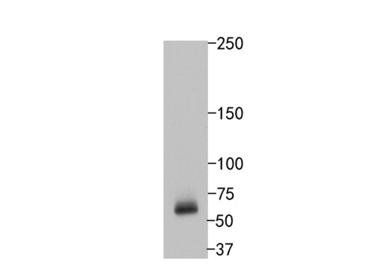 Western blot analysis of SOX11 on human brain tissue lysates. Proteins were transferred to a PVDF membrane and blocked with 5% BSA in PBS for 1 hour at room temperature. The primary antibody (ET1612-76, 1/500) was used in 5% BSA at room temperature for 2 hours. Goat Anti-Rabbit IgG - HRP Secondary Antibody (HA1001) at 1:200,000 dilution was used for 1 hour at room temperature.