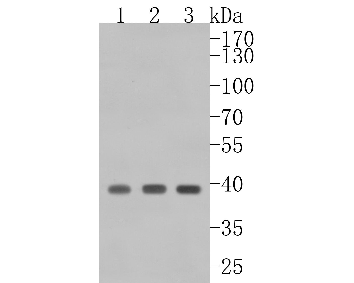 Western blot analysis of Cdk9 on different lysates. Proteins were transferred to a PVDF membrane and blocked with 5% BSA in PBS for 1 hour at room temperature. The primary antibody (ET1612-78, 1/500) was used in 5% BSA at room temperature for 2 hours. Goat Anti-Rabbit IgG - HRP Secondary Antibody (HA1001) at 1:5,000 dilution was used for 1 hour at room temperature.<br /> Positive control: <br /> Lane 1: Hela cell lysate<br /> Lane 2: Jurkat cell lysate<br /> Lane 2: A431 cell lysate