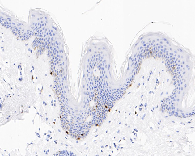 Immunohistochemical analysis of paraffin-embedded human skin tissue using anti-SOX10 antibody. The section was pre-treated using heat mediated antigen retrieval with sodium citrate buffer (pH 6.0) for 20 minutes. The tissues were blocked in 5% BSA for 30 minutes at room temperature, washed with ddH2O and PBS, and then probed with the primary antibody (ET1612-79, 1/50) for 30 minutes at room temperature. The detection was performed using an HRP conjugated compact polymer system. DAB was used as the chromogen. Tissues were counterstained with hematoxylin and mounted with DPX.