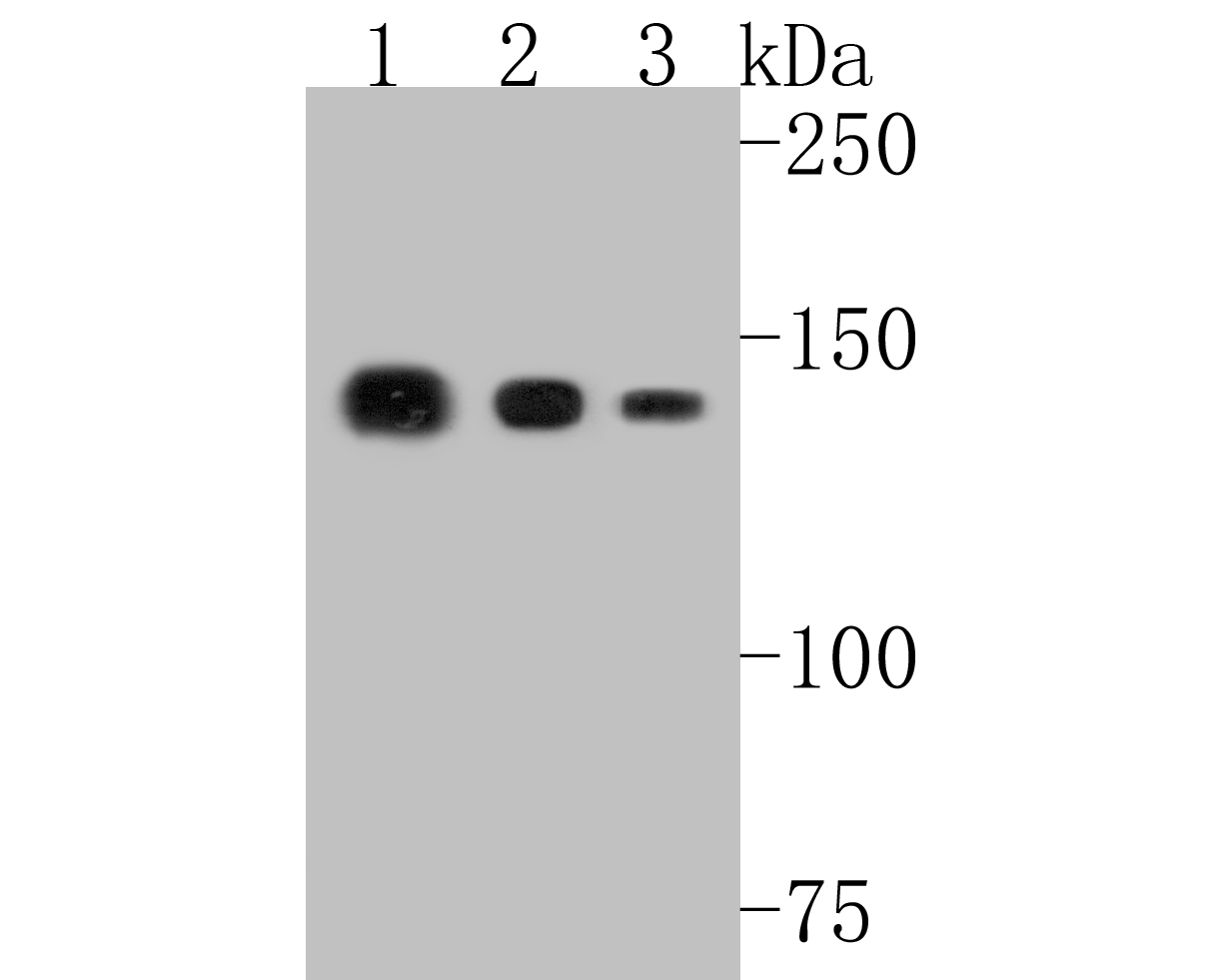 Western blot analysis of Collagen VI on different lysates. Proteins were transferred to a PVDF membrane and blocked with 5% BSA in PBS for 1 hour at room temperature. The primary antibody (ET1612-91, 1/500) was used in 5% BSA at room temperature for 2 hours. Goat Anti-Rabbit IgG - HRP Secondary Antibody (HA1001) at 1:5,000 dilution was used for 1 hour at room temperature.<br /> Positive control: <br /> Lane 1: human skeletal muscle tissue lysate<br /> Lane 2: mouse heart tissue lysate<br /> Lane 3: human heart tissue lysate