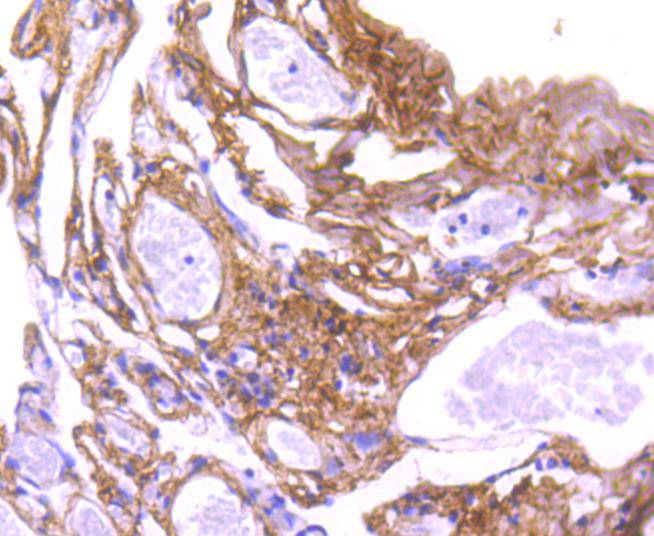 Immunohistochemical analysis of paraffin-embedded human lung tissue using anti-Collagen VI antibody. The section was pre-treated using heat mediated antigen retrieval with Tris-EDTA buffer (pH 8.0-8.4) for 20 minutes.The tissues were blocked in 5% BSA for 30 minutes at room temperature, washed with ddH2O and PBS, and then probed with the primary antibody (ET1612-91, 1/50) for 30 minutes at room temperature. The detection was performed using an HRP conjugated compact polymer system. DAB was used as the chromogen. Tissues were counterstained with hematoxylin and mounted with DPX.