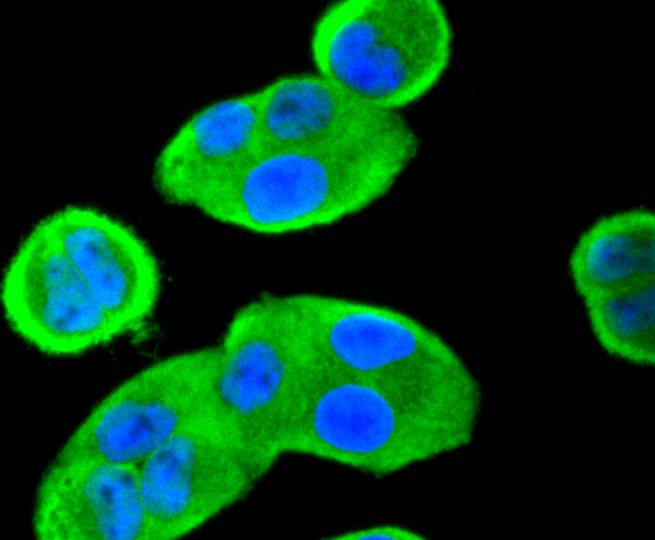 ICC staining of 14-3-3 alpha+beta in Hela cells (green). Formalin fixed cells were permeabilized with 0.1% Triton X-100 in TBS for 10 minutes at room temperature and blocked with 1% Blocker BSA for 15 minutes at room temperature. Cells were probed with the primary antibody (ET1612-99, 1/50) for 1 hour at room temperature, washed with PBS. Alexa Fluor®488 Goat anti-Rabbit IgG was used as the secondary antibody at 1/1,000 dilution. The nuclear counter stain is DAPI (blue).